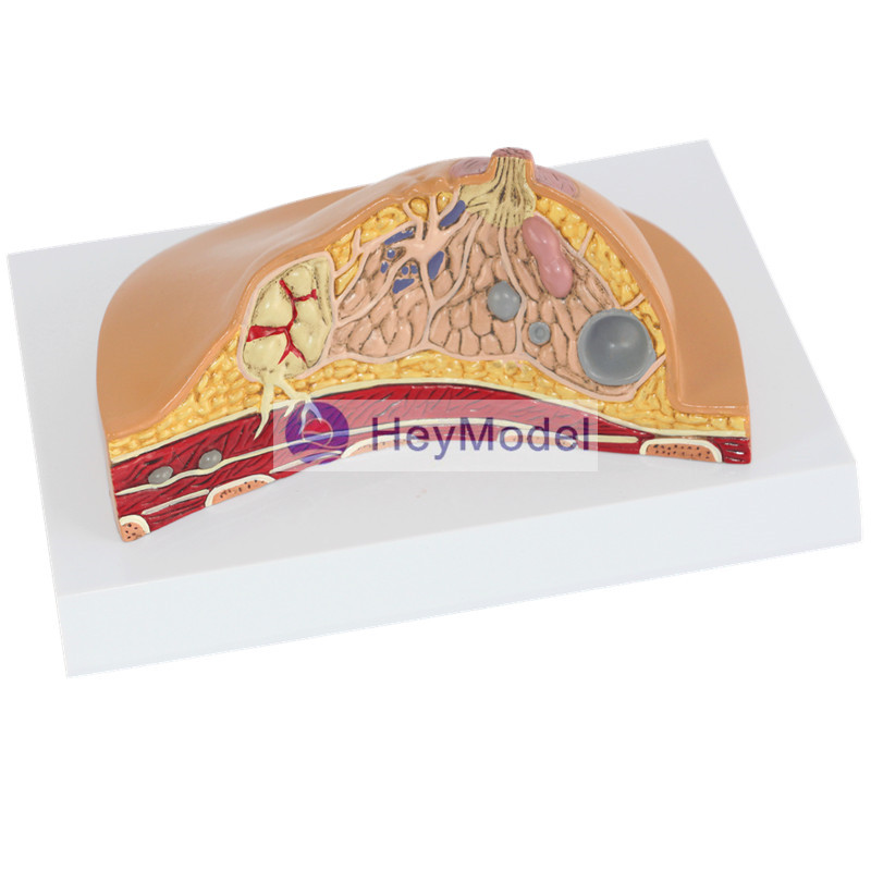 HeyModel Female breast lesions model ...