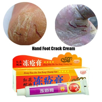 Foot cream for cracked heels Anti Crack Foot and hand care cream skin care Chinese Ointment Anti chapping Feet Care