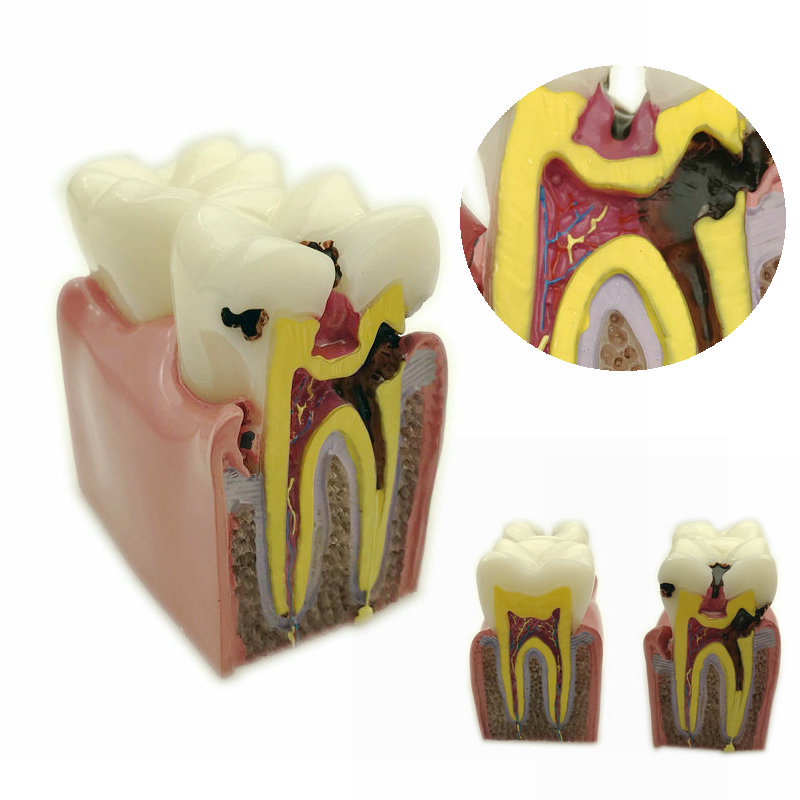 1pc Dental Anatomy Education Teeth Model 6 Times Caries Comparation Study Models For Dentist Studying and Researching1pc Dental Anatomy Education Teeth Model 6 Times Caries Comparation Study Models For Dentist Studying and Researching