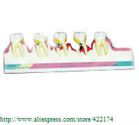 Free shipping Periodontal disease mode dental tooth teeth anatomical anatomy model odontologia
