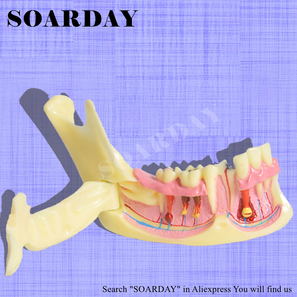 Lower Jaw Pathological Model Dental Caries Communication Model Resin Material Nerve Display soarday 1 piece 2 times dental pathological model display deep caries shallow caries teaching model