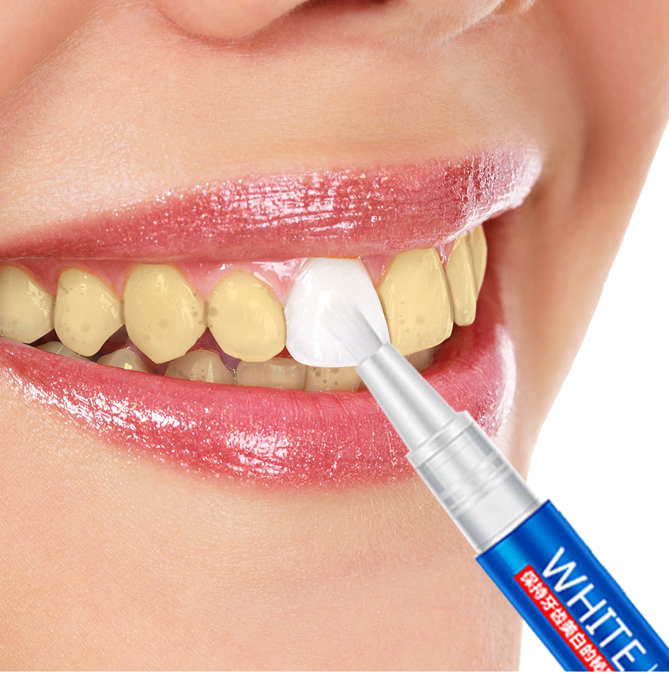 Teeth Whitening Pen Dental Whitening Peroxide Gel Tooth Bleach Whitener Remove Stains Oral Care Hygene Bleaching