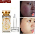 Hyaluronic Acid Liquid Acne Removal Whitening Moisturizing Anti Wrinkle Anti Aging Fade Red Blood Silk Face Skin Care Cream
