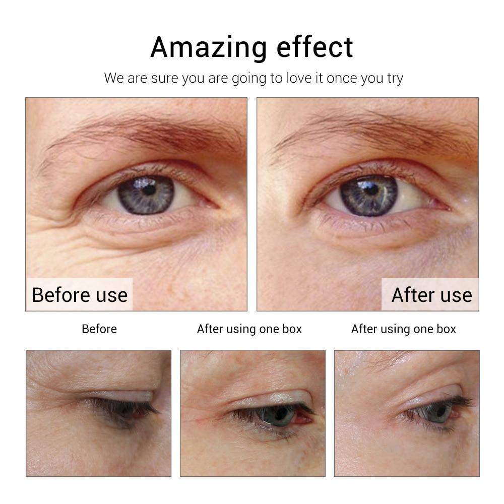 LANBENA Snail Moisturizing Ampule Capsule Facial Cream Serum Skin Whitening Anti Aging Acne Treatment Hyaluronic Acid 5 Grain