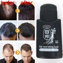 Chinese Anti hair loss Liquid 50ml prevent hair loss hair nourishing liquid in oil control sunburst
