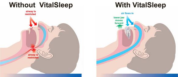 Vital-Sleep-Stop-Snoring-Mouthpiece-How-It-Opens-The-Throat
