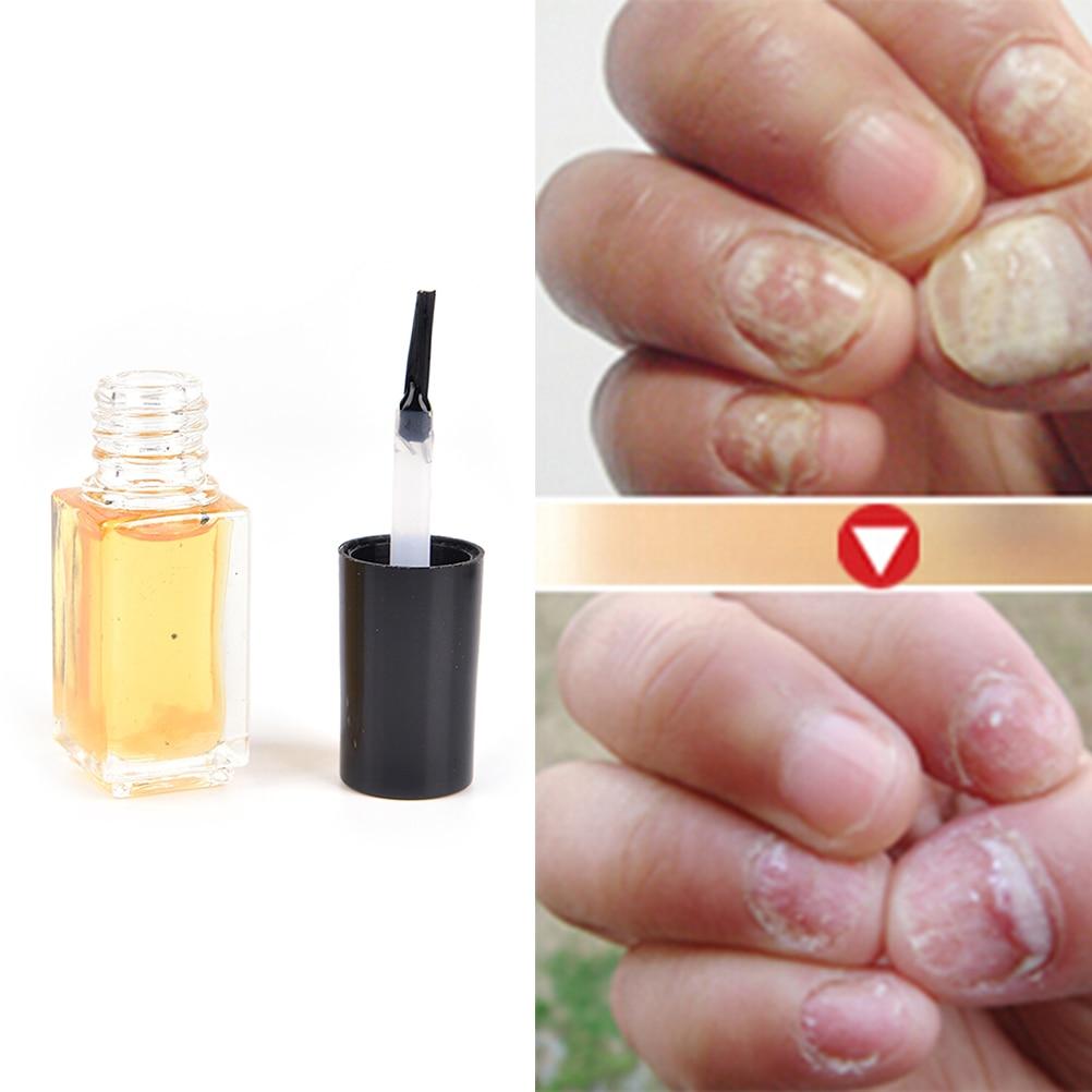 5ML Nail Treatment Onychomycosis Paronychia Anti Fungal Nail ...
