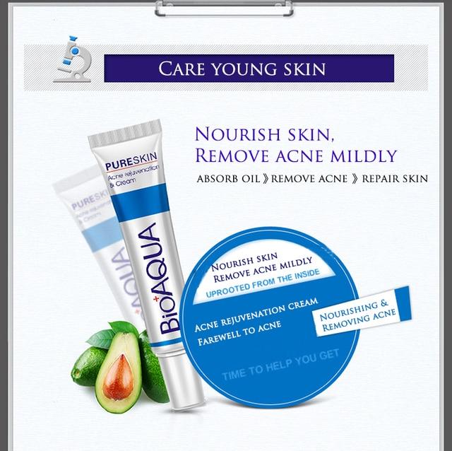 BIOAQUA 30g Treatment Remove Anti Acne Facial Cream Shrink Pores Oil Control Moisturizing Men/Women Face Skin Care 1