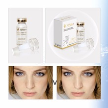 Eficient Whitening Fade Speckle Serum pentru Face Magic Homemade Dark Spot Eliminare Eliminare Eliminare cu Ingrediente Umede 2017