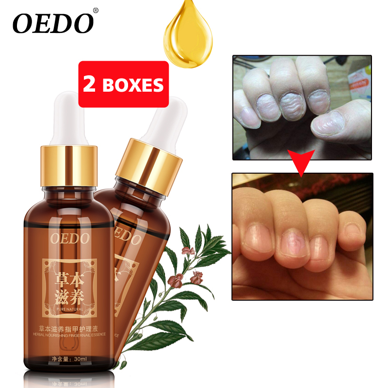 2Piece/lot Nail Treatment Essential oil Hand and Foot Whitening Toe Nail Fungus Removal Infection Feet Care Polish Nail Gel samiyah tasleem baqir shyum and abid raza skin wound infection treatment