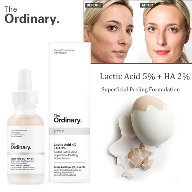 The Ordinary Lactic Acid 5% + HA 2% Superficial Peeling Formulation 30ml Face Skin Exfoliation Remove Scars Spots