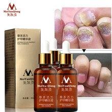 3pcs Fungal Nail Treatment Essence Foot Whitening Toe Fungus