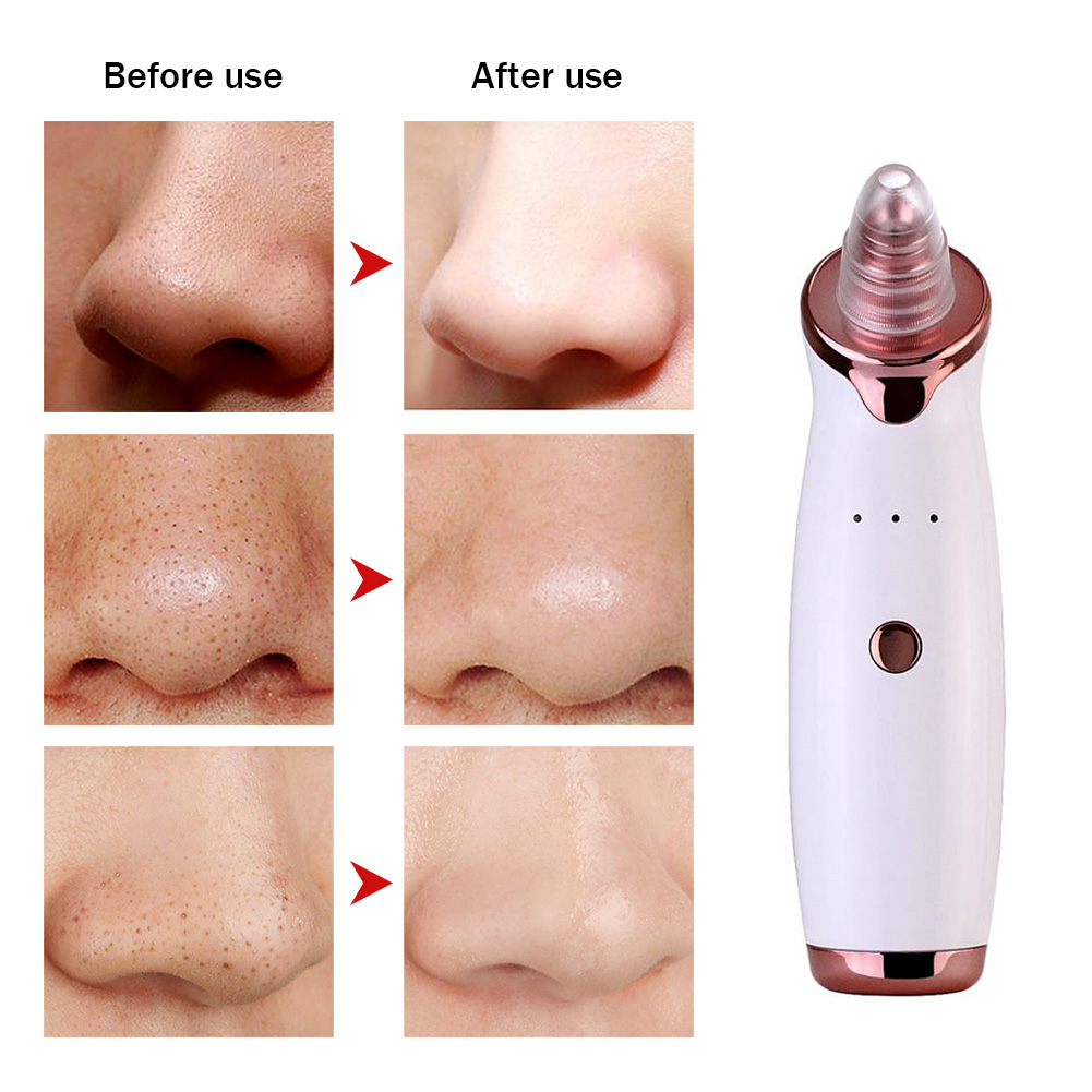 Pore Cleaner Blackhead Remover Vacuum Electric Nose Face Deep Cleansing Comedo Suction Facial Beauty Machine Skin Care Machine