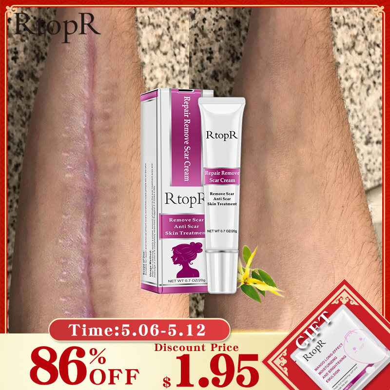 Top 10 Pigmented Acne Scars Brands And Get Free Shipping 3c3lki5n