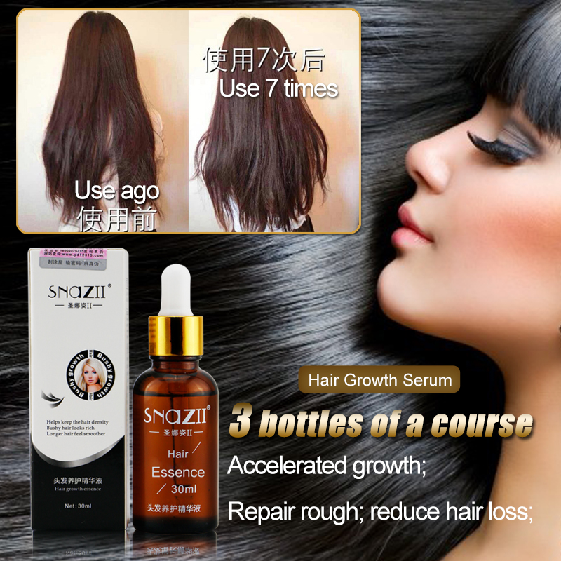 Favorito 2 pz 30 ml buon shampoo crescita dei capelli veloce siero per le  CU71