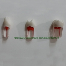 Free Shipping Dental Tooth Root Canal Treatment Model Molar Canine Incisor With Nerve Practice Model