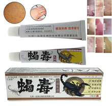Herbal Psoriasis Cream for Skin Care Dermatitis Eczema Pruritus Ointment Treatment psoriasis creamD164