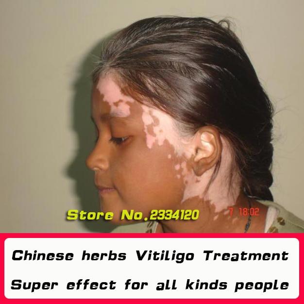 Chinese Medical White Spot Disease Liquid Pigment Melanin Promoting Liniment Skin Vitiligo Leukoplakia Disease Treatment 50ml Aliexpress