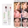 100% эффективное крем женщины мужчины прыщи быстрая шрамов от угревой сыпи ремонт красные пятна на лице гладкий естественным завод