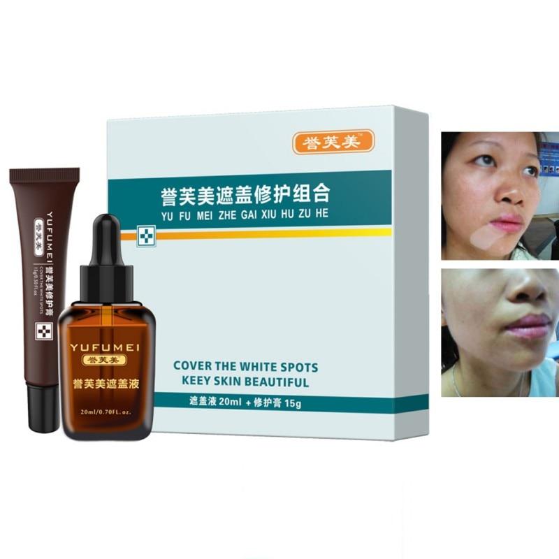 Professional Tattoo Concealer Vitiligo Scars Birthmarks Cover Plant Essence Set Skin Repair Cream + Liquid