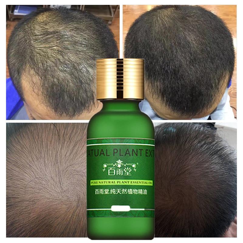 Andrea Hair Growth Ginger Oil Natural Plant Essence Faster Grow Beard Eyelashes Hair Tonic Shampoo Hair Loss Hair Care Serum 5