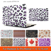 Leopard Print Water Sticker Case For Apple Macbook Air Pro Retina 11 12 13 Retina 15