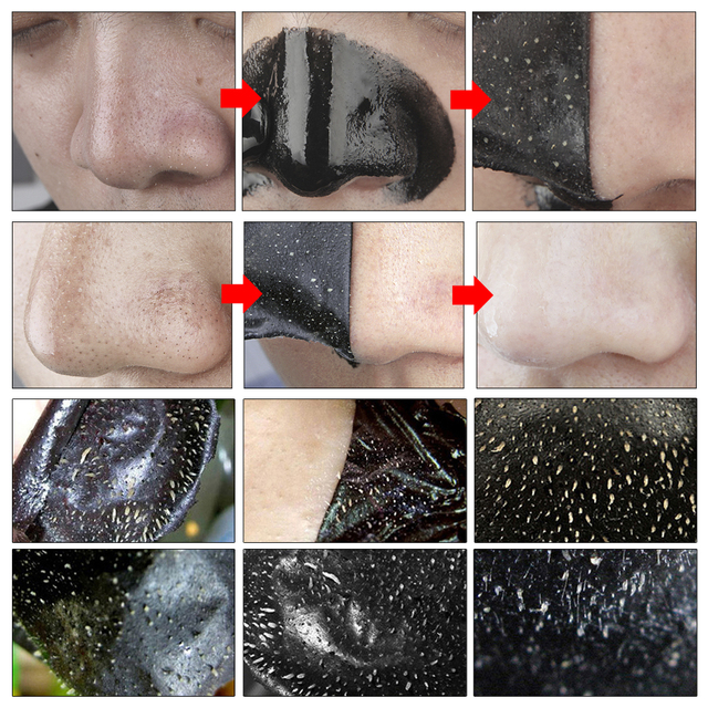 LANBENA Blackhead Remover Nose Masks Face Mask Acne Treatment Peeling Black Mask Pore Strip Black Head Peel Mask Skin Care 10PCS