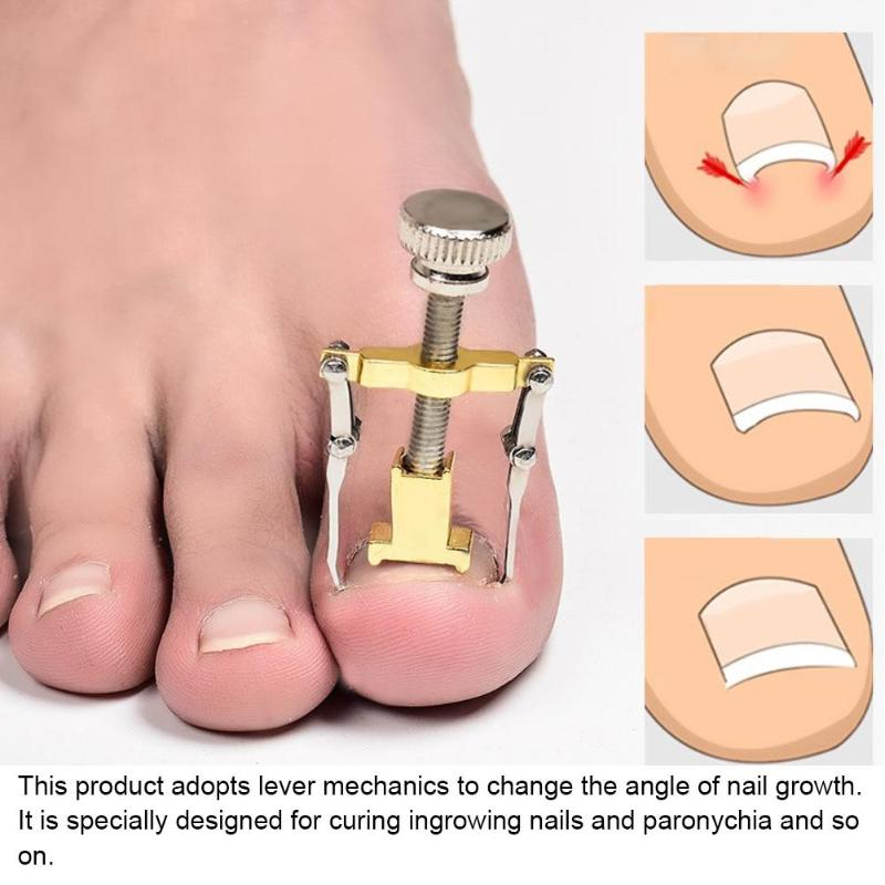 2pcs Ingrown Toe Nail Fixer Pedicure Toenail Recover Nail Correction ...