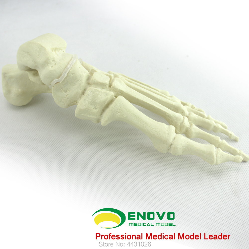ENOVO The osteopathic osteopod of bone and bone of orthopaedic bone was implanted into a simulation model the bone queen