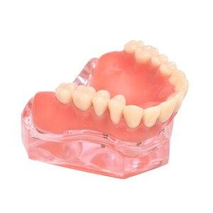 Image 3 - Dental Overdenture ฟันรุ่นที่ถอดออกได้ภายใน Mandibular ล่างฟันรุ่น Mandibular พร้อม Implant สำหรับฟันการสอนการศึกษา