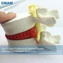 CMAM-VERTEBRA08 Demo model of lumbar disc herniation ,1.5 times Enlarge, Pathological model for Patient Communication