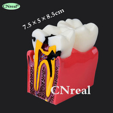 1 pc Dental Teeth Model Caries Illustration Contrast Model 6 Times 1pcs caries teeth model 6 times caries comparation study models tooth decay model denture teeth model for dental study teaching