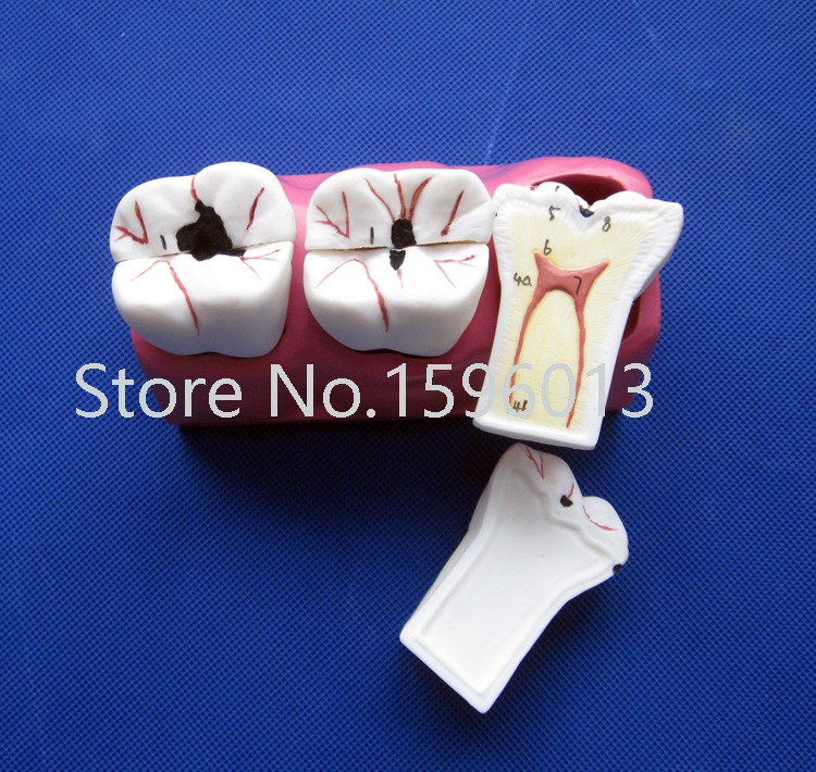 Dissected Model of Dental Caries,Caries decomposition model dissected model of teeth tissue dental care model