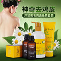 Audala queratosis Pilaris foliculitis esencia la piel de gallina exfoliante blanqueamiento exfoliante crema para el cuerpo belleza salud cuidado de la piel