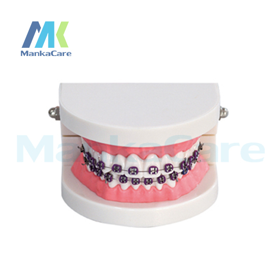 Manka Care -   28 pcs Tooth ,all metal bracket Oral Model Teeth Tooth Model
