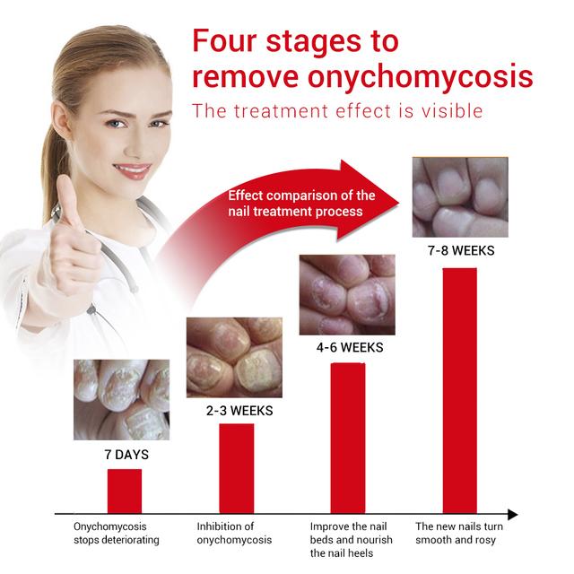 LANBENA Nail Care Gel+Nail Repair Essence Serum Nail Treatment Remove Onychomycosis Toe Nail Nourishing Hand And Foot Care 2PCS