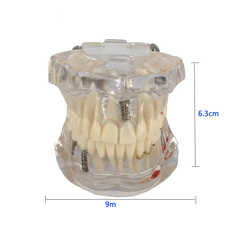 Dental Implant Disease Teeth Model With Restoration Bridge Tooth Dentist For Medical Science Dental Disease Teaching Model