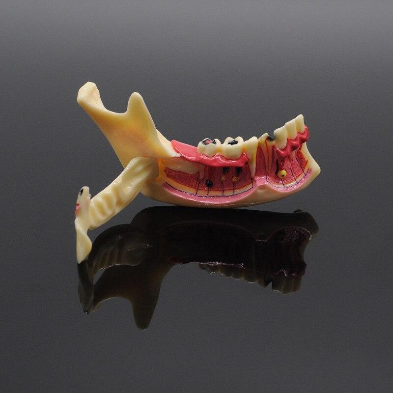 Dentistry Teaching Training Model Dental Communication Model Mandibular Model