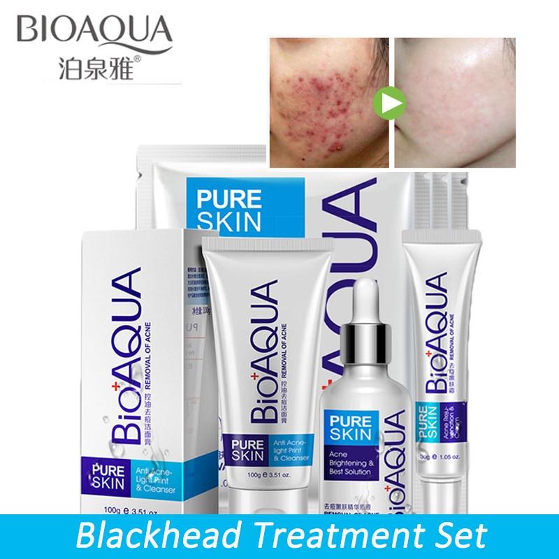 Face-Care-Set Treatment Whitening Anti-Acne-Removal BIOAQUA Moisturizing Scar Gel 4-Pcs