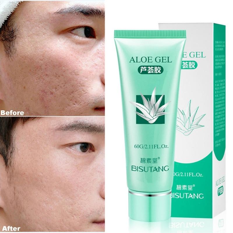 New Useful aloe vera gel anti wrinkle cream acne scar moisturizer whitening repair drying
