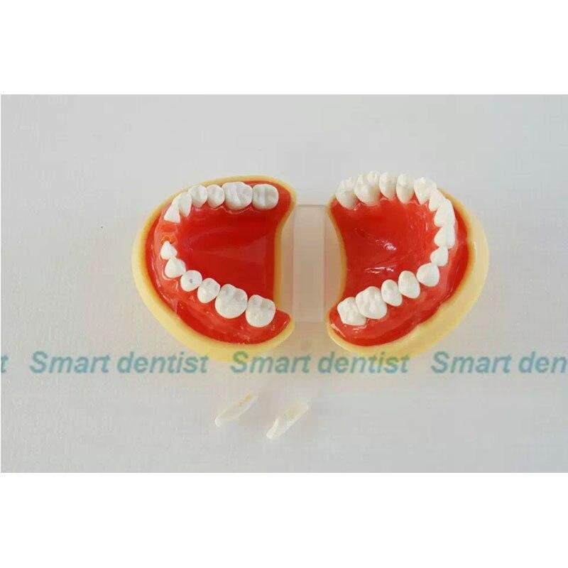 2016 KQH-H330/S5A, modèle de mâchoire dentaire standard A, dents blanches avec gomme, modèle dentaire, éducation, médecine - 4