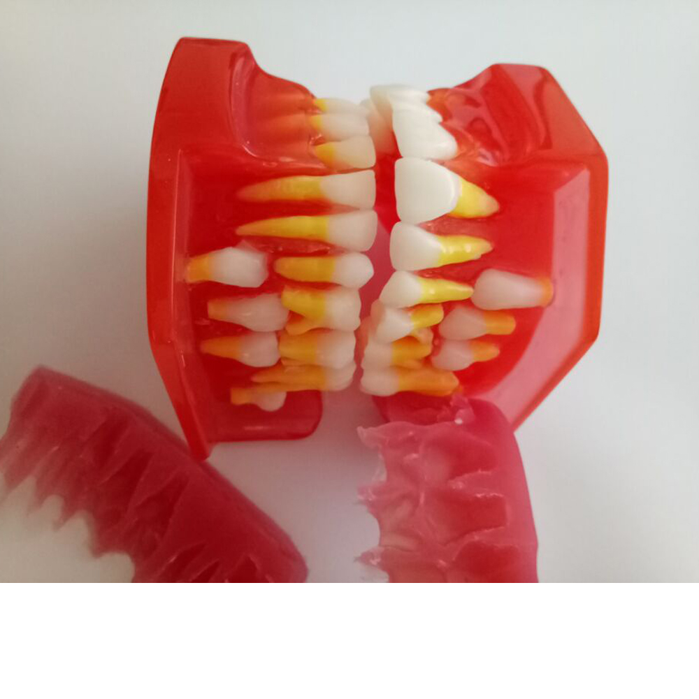 1pc Productos De Laboratorio Dental Show 9 12 Years Old Children s Teeth Development