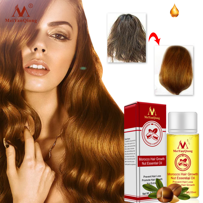 Herbal Nut Hair Care Essence Oil Repair Hair Damage Accelerate Growth Prevent Hair Loss Hair Care Products 20ml