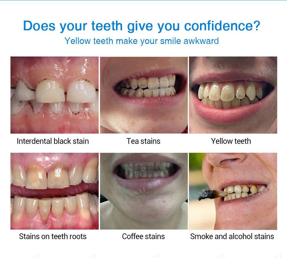 Eficaz Ferramentas Dentes Clareamento Dental Gel De Peroxido De