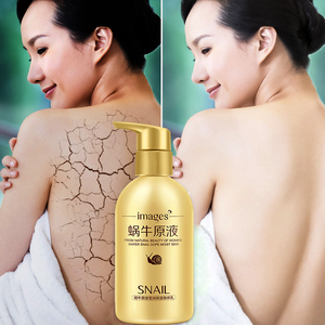 IMAGES snail concentrate acne