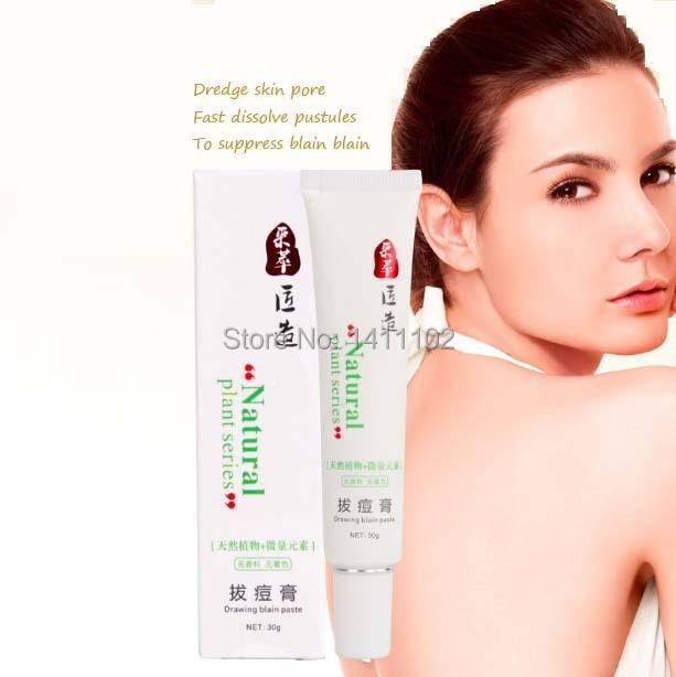 New 100% Natural plant Anti acne face cream facial treatment face care skin acne scar cream Acne and sopt Pimples remover
