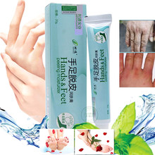Foot Hand Body Cream Hydrates Severely Dry Skin Peeling Moisturizing for Feet Hands All-shipping(China)
