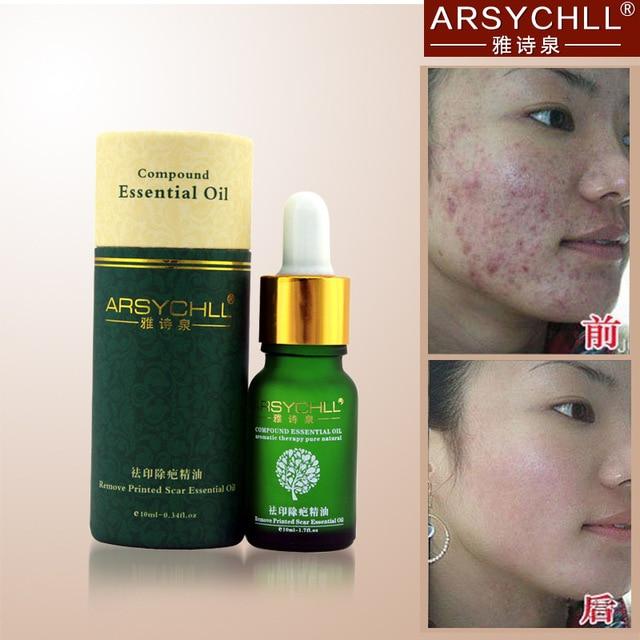 face black marks removal cream