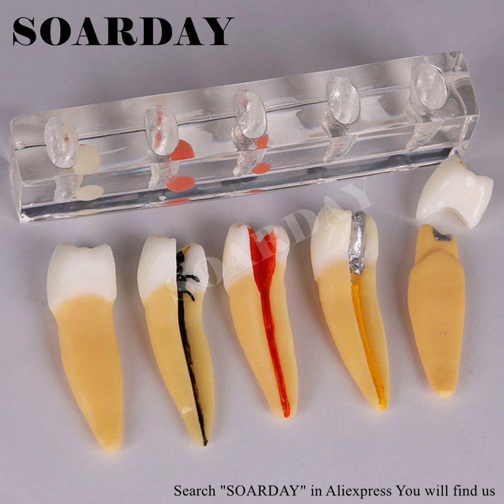 SOARDAY Dental Pulp Model Root Canal Display Model Tooth Crown Removable DentistrySOARDAY Dental Pulp Model Root Canal Display Model Tooth Crown Removable Dentistry