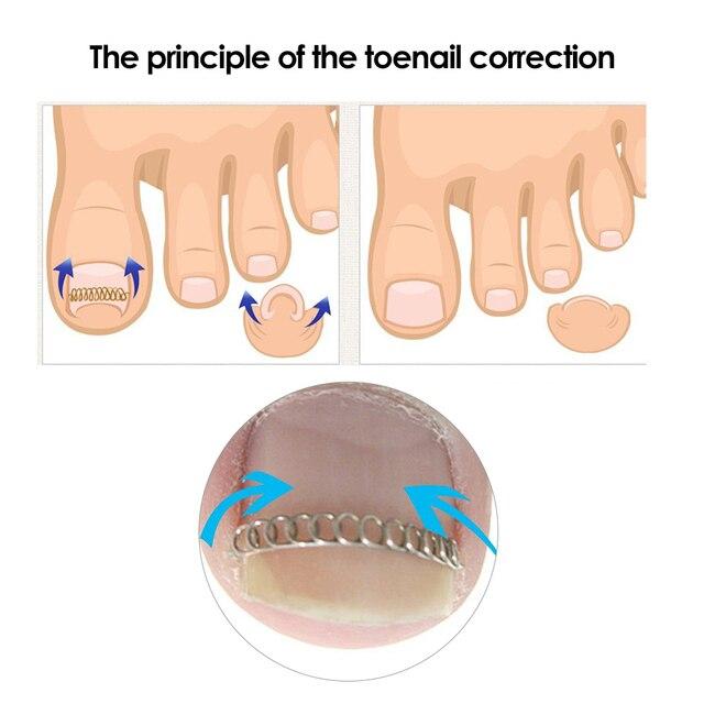 12Pcs/Box Foot Care Ingrown Toenail Correction Wire Fixer Paronychia ...